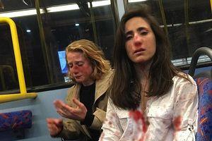 Hai cô gái đồng tính bị đánh đập dã man vì từ chối hôn nhau trên xe buýt