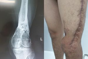Bác sĩ kể lại hành trình 5 năm cứu chân chàng trai thối mủn lủng lẳng