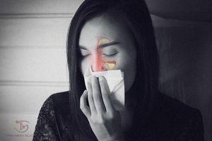 Viêm xoang sàng, hàm, trán: Nguyên nhân, dấu hiệu và cách chữa