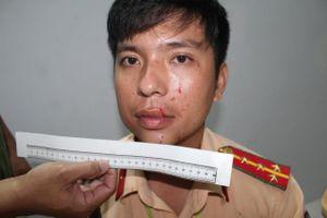 Đại úy cảnh sát bị nhóm thanh niên say xỉn đánh bị thương