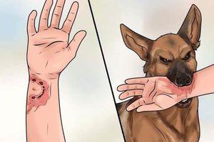 Những cách sơ cứu khi bị chó tấn công tránh mắc bệnh dại