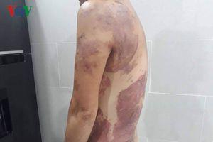Nhắc nhở để xe lấn chiếm, người phụ nữ bị tạt chảo dầu sôi vào người