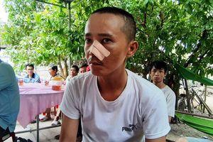 Vụ 3 cha con bị truy sát ở Quảng Nam: Nạn nhân đau đớn kể lại buổi chiều định mệnh cướp đi người cha tần tảo