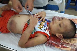 Mẹ đồng tính, bé trai 6 tuổi bị bạo hành dã man ở Tây Ninh