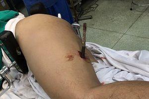 Trượt té tại công trường, nam công nhân bị thanh sắt đâm xuyên đùi