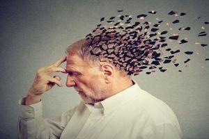 Muốn không bị sa sút trí tuệ sớm, mỗi người cần nhớ bổ sung những vitamin, khoáng chất cần thiết sau đây