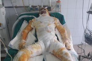 Hải Dương: 5 công nhân bị bỏng nặng do sự cố sụt lò luyện gang