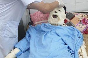 Bình ga nổ trong đám tang, 5 người nhập viện