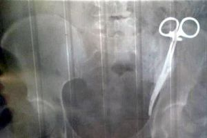 Hoảng hồn phát hiện bác sĩ để quên kẹp trong bụng suốt 23 năm