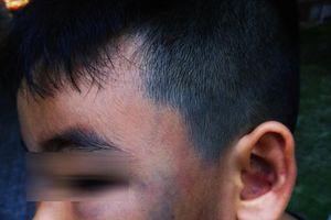Nóng mạng xã hội: Phẫn nộ khi bé trai 8 tuổi bị đánh khi đang nghịch với đàn gà