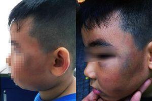 Bé trai 8 tuổi bị đánh bầm dập vì nghi ăn trộm gà: Công an vào cuộc