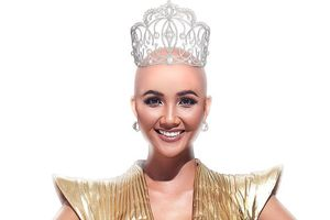 'Sốc' với hình ảnh hoa hậu H' Hen Niê cạo trọc đầu