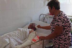 Giận bố mẹ bỏ rơi, cô gái lên cơn động kinh châm lửa tự thiêu khiến toàn thân bỏng nặng