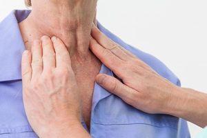 Ung thư vòm họng có liên quan tới yếu tố gen