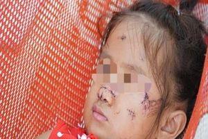 Chó hoang tấn công bé gái 2 tuổi tại Tây Ninh