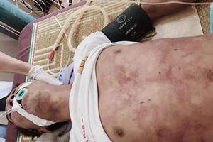Thịt lợn chết liên hoan, một người đàn ông nhiễm liên cầu khuẩn thiệt mạng