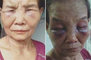Tố con dâu đánh mẹ chồng: Đánh xong khóc xin lỗi