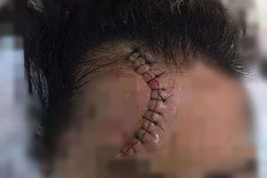 Hà Nội: Truy tìm tài xế ô tô Mazda CX5 đâm cô gái trọng thương rồi bỏ chạy