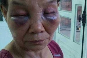 Vụ con dâu đánh mẹ chồng bầm dập mặt mũi: Con dâu bị phạt 2 triệu và tiết lộ 'mẹ chồng tưới nước đái khắp nhà'