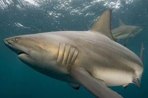 Chiếc răng cá mập 'mắc kẹt' trong chân người đàn ông 25 năm