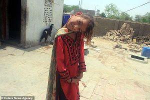 Bé gái 10 năm sống vật lộn với chiếc cổ vẹo 90 độ, không thể tự mình chải tóc hay đi lại