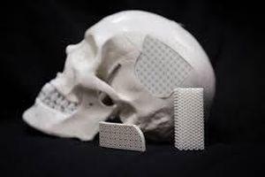Nga phát triển được mô xương cấy ghép hoàn toàn giống xương thật