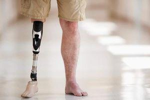 Chứng rối loạn quái lạ khiến người bệnh muốn cắt tay chân