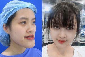Nữ sinh trường Cảnh sát thay đổi ngoại hình sau phẫu thuật thẩm mỹ