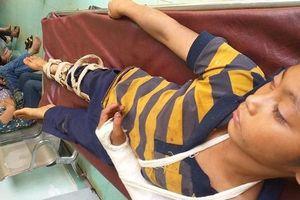Xác minh nghi vấn bé trai 11 tuổi bị hãng xóm đánh gãy tay, phải nhập viện