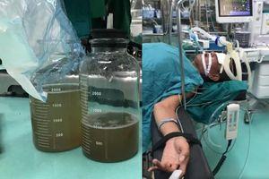 Dùng miệng hút dầu diesel người bệnh lâm vào tình trạng nguy hiểm