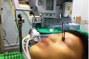 Thanh Hóa: Nam sinh 13 tuổi bị 3 mũi tên xuyên vào mắt khi bắt cá