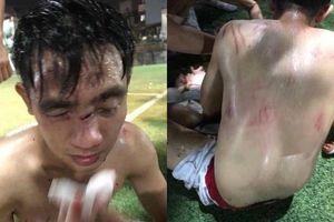 Mâu thuẫn trong lúc tranh chấp bóng, nam thanh niên bị đội bóng 'xăm trổ' đánh chấn thương