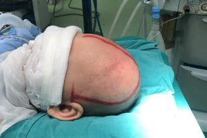 Phẫu thuật dị dạng hộp sọ cho bé 5 tháng tuổi