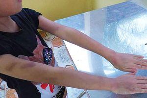 Quảng Ninh: Công an vào cuộc điều tra vụ nữ 'gia sư' bị tố cáo bạo hành học sinh