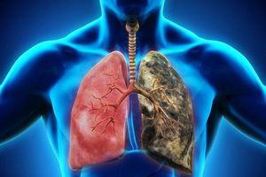 Ung thư phổi là gì? Nguyên nhân, triệu chứng và cách điều trị ung thư phổi