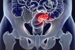 Ung thư đại tràng là gì? Nguyên nhân, triệu chứng và cách điều trị ung thư đại tràng