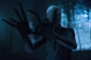 Bị bệnh với tứ chi dài bất thường, diễn viên chuyên vào vai quái vật