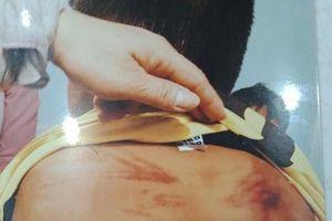 Điều tra việc người đàn ông tu hành tại gia đánh đập dã man bé trai