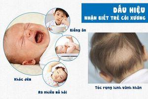 Bệnh còi xương ở trẻ em, những điều nên biết