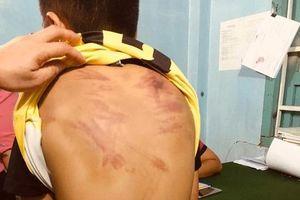 Bé trai 11 tuổi bị bạo hành ám ảnh mỗi khi đi ngang chùa
