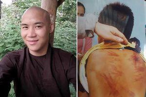 Thầy chùa bạo hành bé trai 11 tuổi: Lai lịch 'bất tín' của thầy Lương Việt Đức?