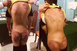 Thầy tu ở Bình Thuận khai đánh bé trai 11 tuổi, phủ nhận xâm hại tình dục