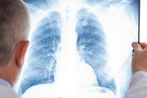 Dùng trí tuệ nhân tạo để chẩn đoán bệnh qua ảnh X quang