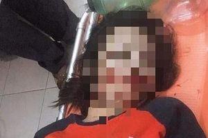 Hà Tĩnh: Nữ sinh 17 tuổi tử vong vì vướng phải dây điện giữa đường