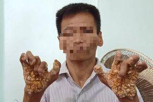 Ghi nhận căn bệnh 'người cây' xuất hiện ở Việt Nam