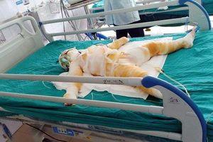Vụ 3 trẻ bị bỏng nặng khi học phòng chống cháy nổ: Các nạn nhân đều tiên lượng xấu