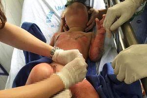 Thông tin mới vụ cô giáo dùng cồn dạy học làm 3 trẻ bỏng nặng