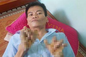 Cuộc sống khốn khổ của 'người cây' kỳ lạ ở Việt Nam