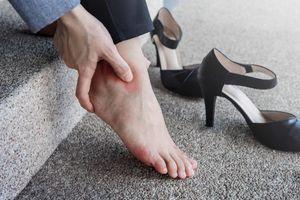 Người mẫu suýt phải cắt chân vì đi dép quai hậu