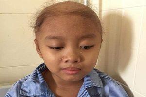 Nước mắt và đau đớn của bé gái 10 tuổi mắc bệnh u não